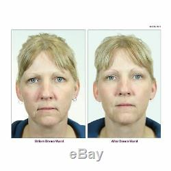 Dermawand Anti-âge Soins De La Peau Système Complet + (2) Bouteilles Pré-traitement Du Visage